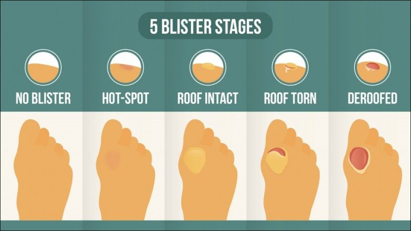 blister stages